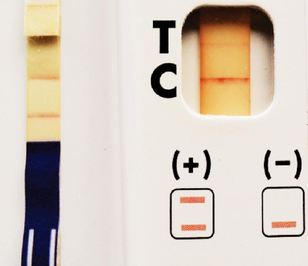 Image: The Alere Filariasis Test Strip (FTS) (Left panel, strong positive) and The BinaxNOW Filariasis Immunochromatographic card (Right pane, weak positivel) are in vitro immunodiagnostic tests used to detect Wuchereria bancrofti antigen in whole blood, serum, or plasma (Photo courtesy of Dr. Peter U Fischer).