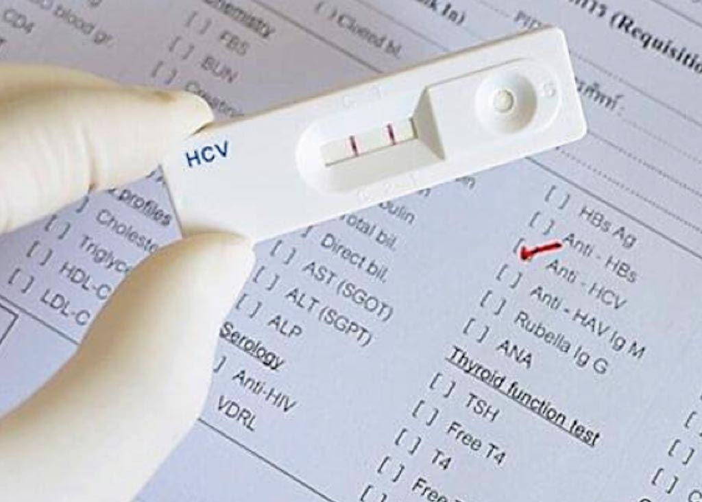 Image: Hepatitis C virus (HCV) tests are immunochromatographic rapid tests for the qualitative detection of antibodies specific to HCV in human serum, plasma or whole blood (Photo courtesy of Dr. Robert Cox, MD).