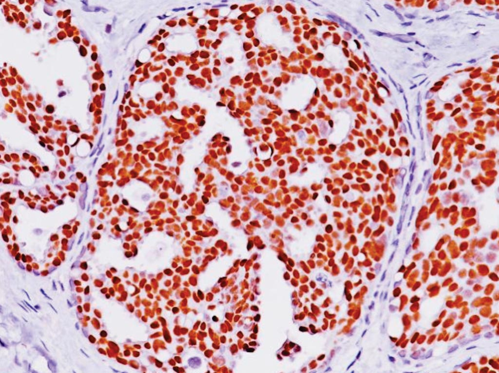 Image: Immunohistochemistry of estrogen-receptor-positive (ER (+)) breast cancer (Photo courtesy of Biocare Medical).