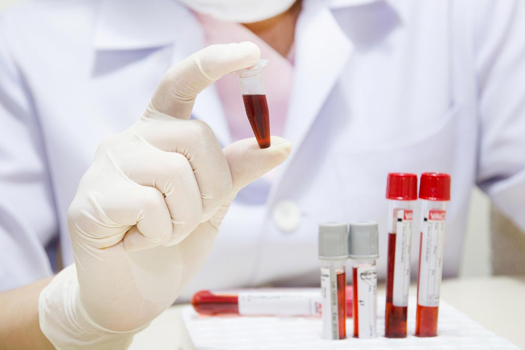 Image: The market for clinical chemistry tests is projected to grow at 3% for the next five years to USD 19.7 billion in 2021 (Photo courtesy of Shutterstock).