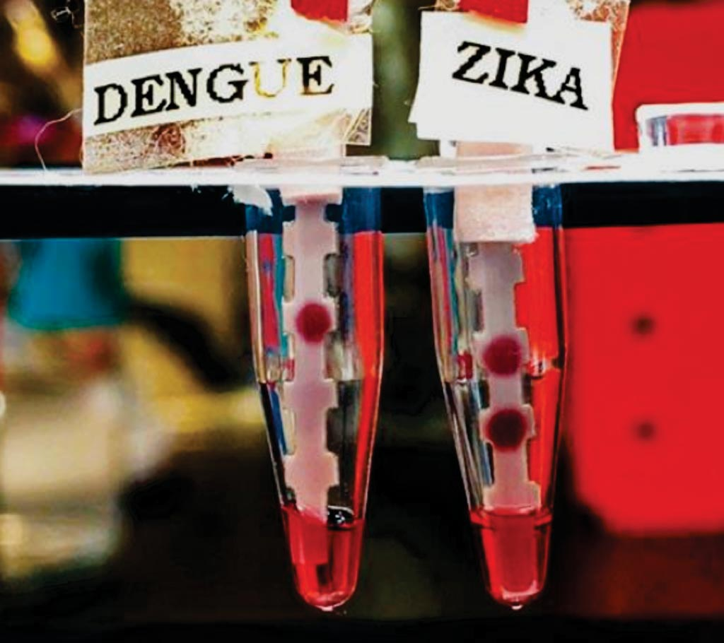 Image: Dipstick tests for dengue (left) and Zika (right) accurately identify the presence of Zika virus protein in a sample (Photo courtesy of Massachusetts Institute of Technology).