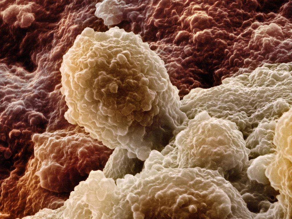 图片:前列腺癌细胞的扫描电子显微照片(SEM)(照片由 David McCarthy 提供)。