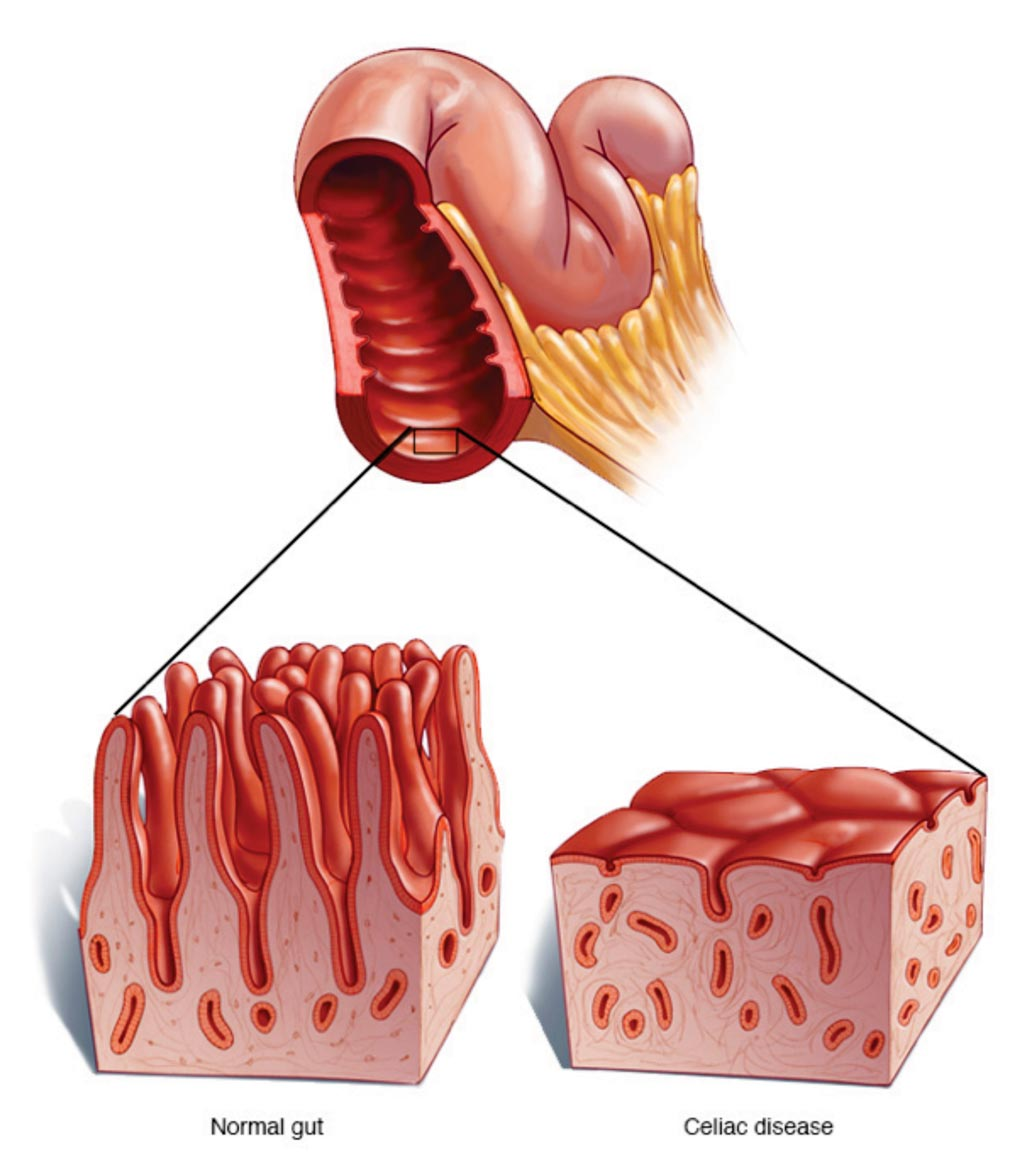 Image: A diagram comparing the small intestine in Celiac disease with damaged villi and a normal bowel (Photo courtesy of the Mayo Clinic).