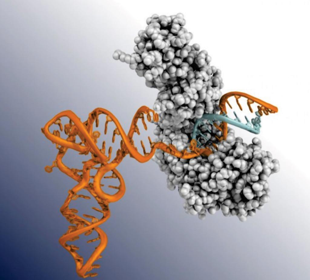 Image: An ancient bacterial enzyme (grey) crawls along a tangled strand of RNA (orange), creating a complimentary strand of DNA (blue). This enzyme, called GsI-IIC RT, and part of a group of enzymes known as TGIRTs, have novel properties that make it easier to detect RNA biomarkers from cancer and other disorders (Photo courtesy of the University of Texas at Austin).