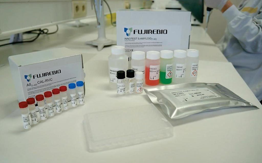 Image: The INNOTEST β-AMYLOID(1-42) is a solid-phase enzyme immunoassay for the quantitative determination of β-amyloid(1-42) in human cerebrospinal fluid (CSF) (Photo courtesy of Fujirebio Diagnostics).