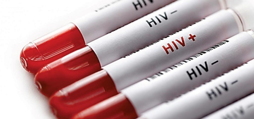 Image: Blood samples tested for human immunodeficiency virus (Photo courtesy of iStock).