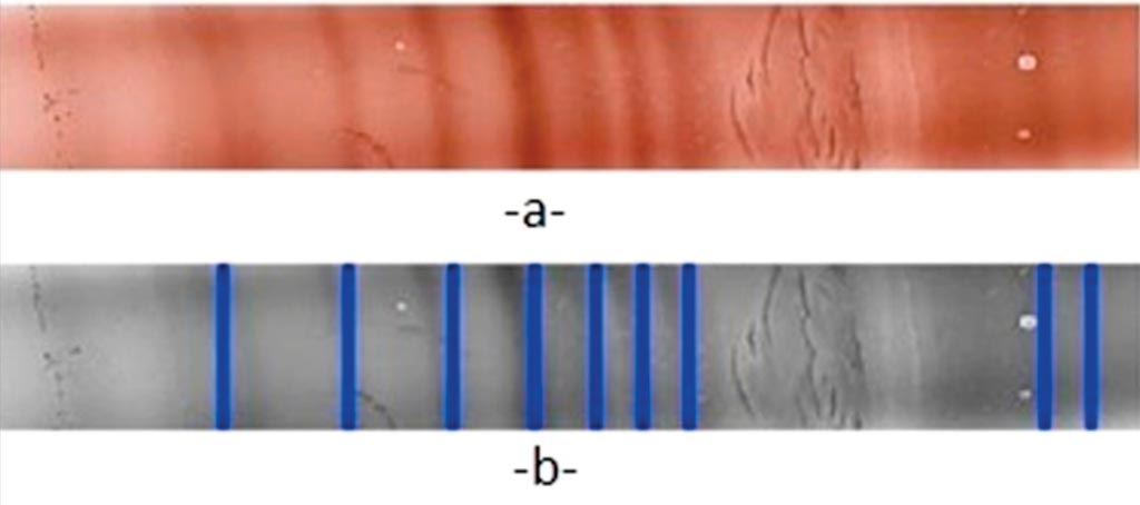 Image: Isoelectric focusing on agarose gel for immunoglobulins: a) Original scanned color image, b) gray scale image (Photo courtesy of the Catholic University of Lille).