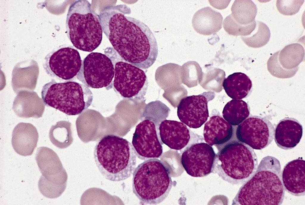 Image: Acute lymphoblastic leukemia (Photo courtesy of Pathology Outlines).