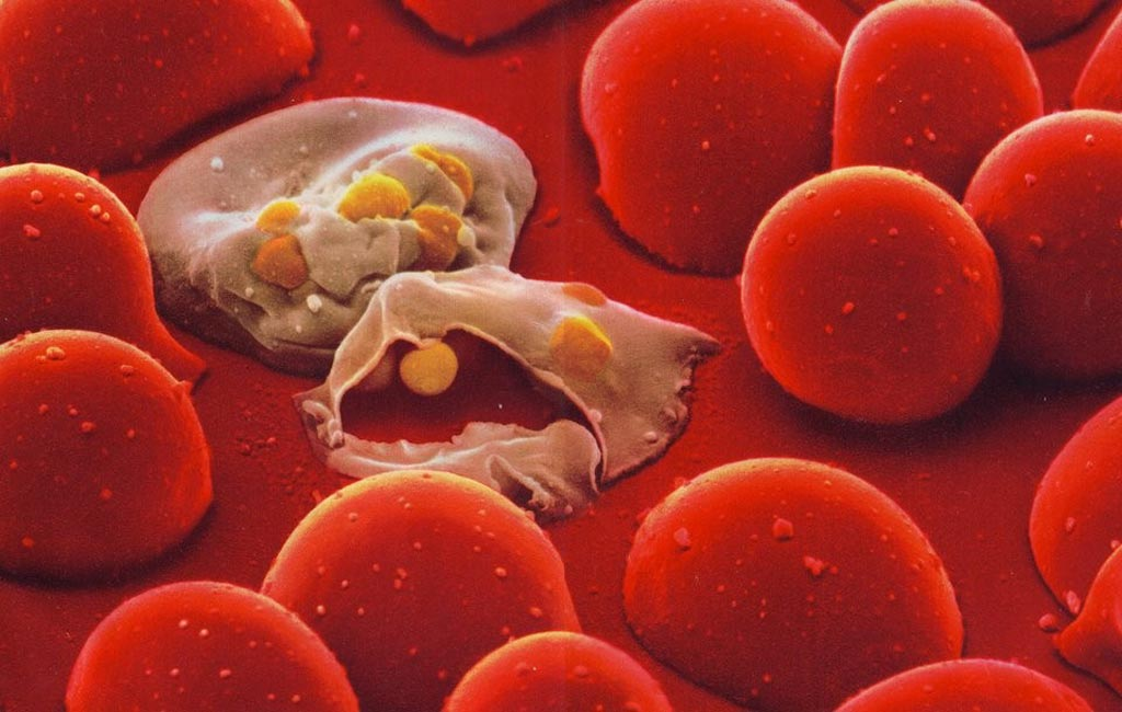 Image: Malaria parasite in human blood (Photo courtesy of Shutterstock).
