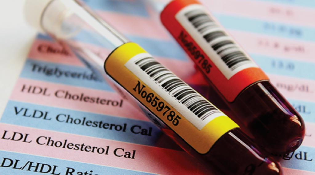Image: New accurate cholesterol test may allow patients to pass on fasting (Photo courtesy of Johns Hopkins School of Medicine).