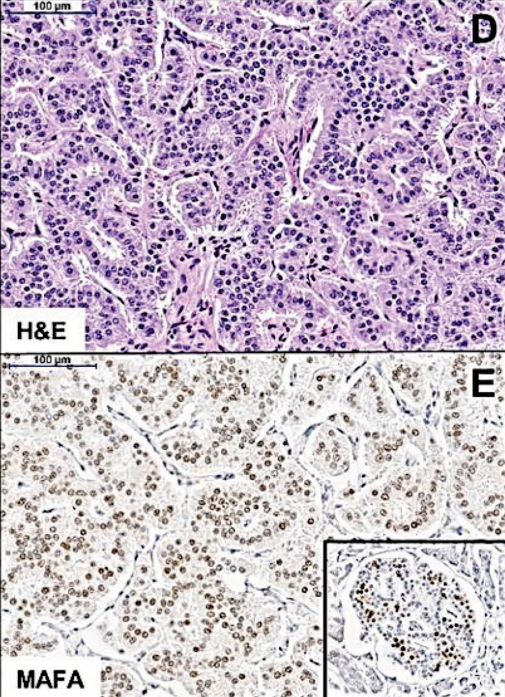 Image: Histopathology: (D) H&E staining showing the trabecular pattern of MAFA mutation-positive insulinomas. (E) Immunostaining shows diffuse MAFA expression in the tumor, at lower levels compared with the neighboring normal islets strongly expressing MAFA (Inset) (Photo courtesy of the Queen Mary University of London).