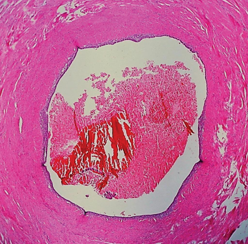 Image: Histopathology of Endometriosis of the Fallopian Tube (Luminal Pattern). In this pattern, the normal complex, folded tubal mucosa is replaced by flat columnar epithelium with a tin underpinning of specialized endometrial stroma. There are also blood cells in the lumen Photo courtesy of Dr. Ed Uthman).