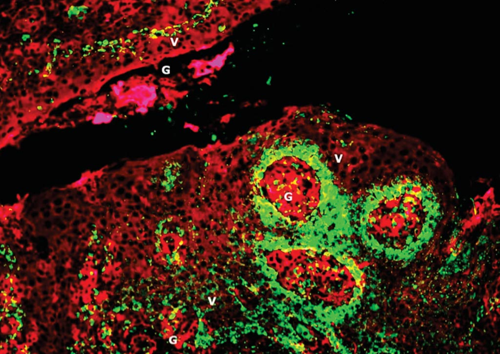 Image: Human papilloma virus (HPV) encased in biofilms inside tonsil crypts (pictured) may explain why the roughly 5% of HPV-infected people who develop cancer of the mouth or throat are not protected by their immune systems. Tonsil crypts with HPV are shown in green; epithelial and biofilm layers are shown in red (Photo courtesy of Dr. Katherine Rieth, MD).