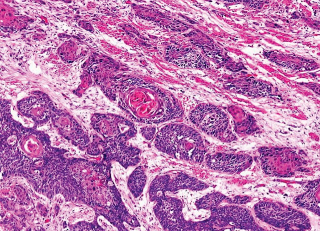 Image: A histopathology of esophageal squamous cell carcinoma with keratin pearl formation (Photo courtesy of Dr. Dharam Ramnani, MD).
