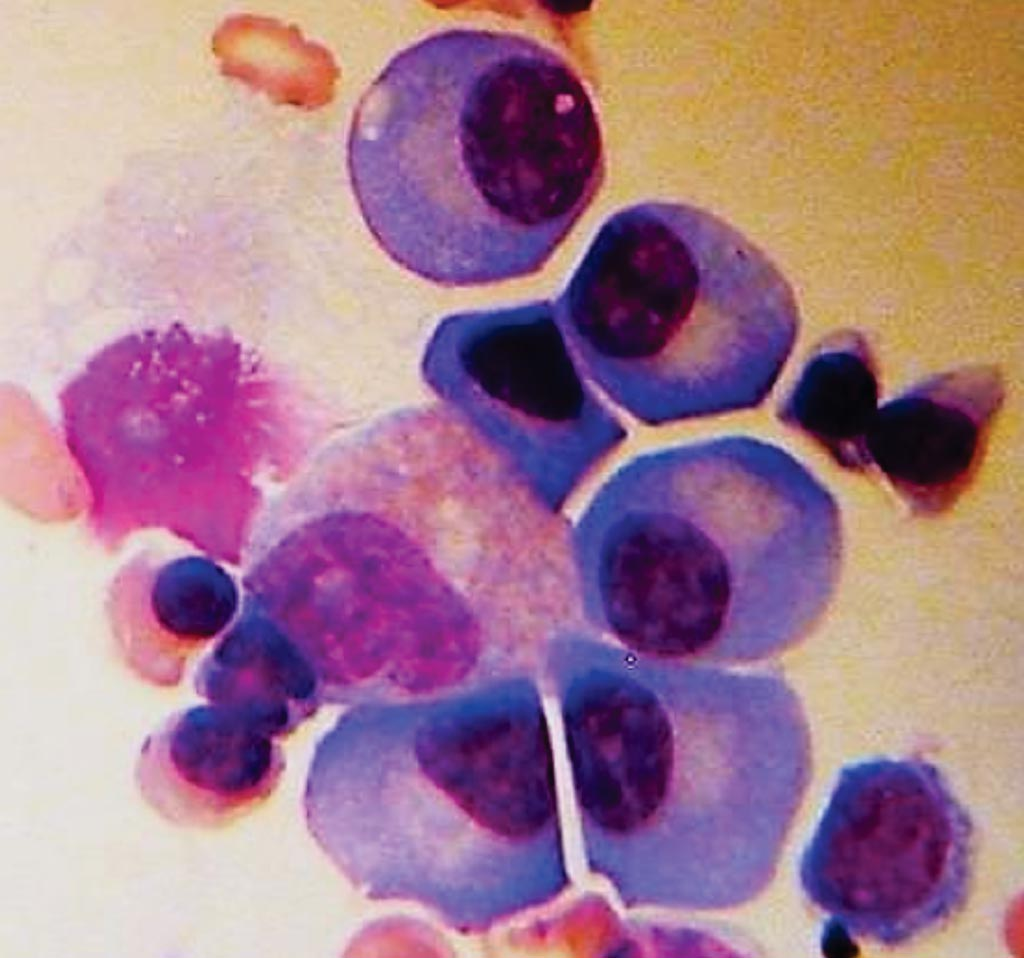 Image: A bone marrow biopsy showing plasma cells from a patient with multiple myeloma (Photo courtesy of the American Society of Clinical Oncology).