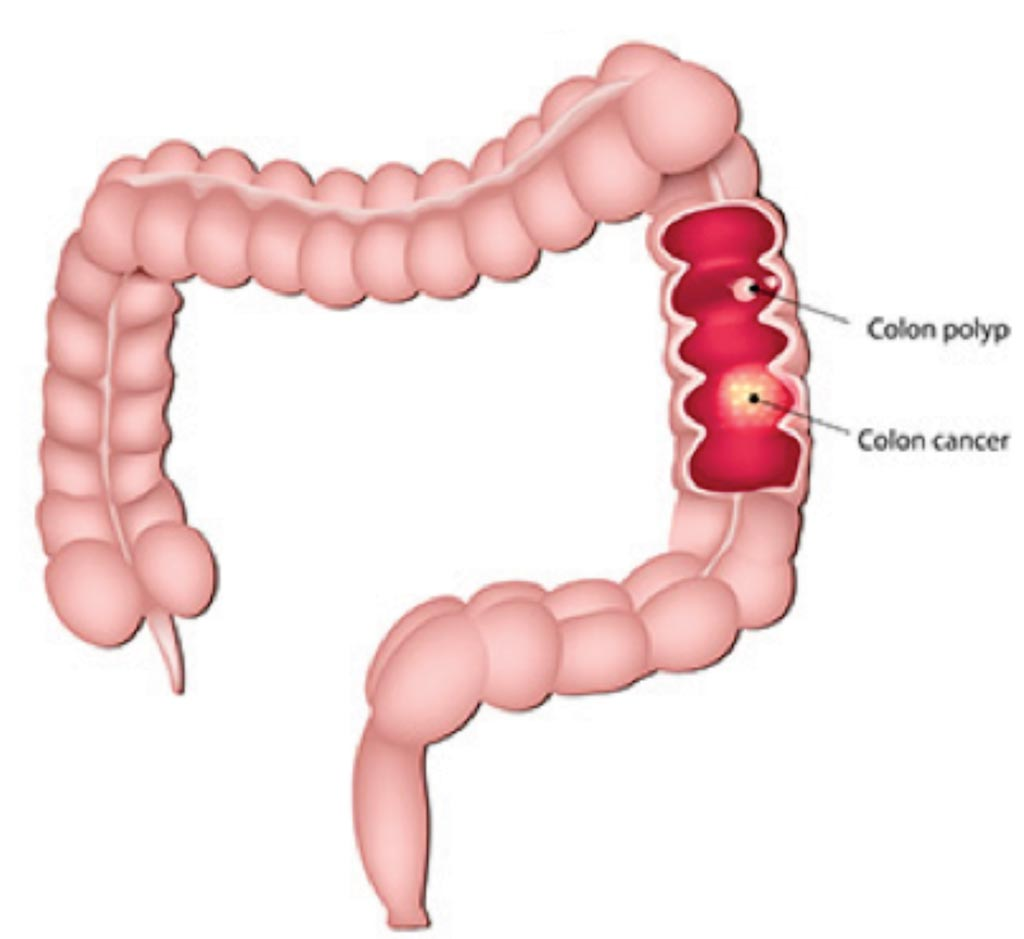Image: A diagram of colon cancer and a colon polyp; not all polyps are cancerous, but nearly all colorectal cancers begin as a polyp (Photo courtesy of Jefferson Health).