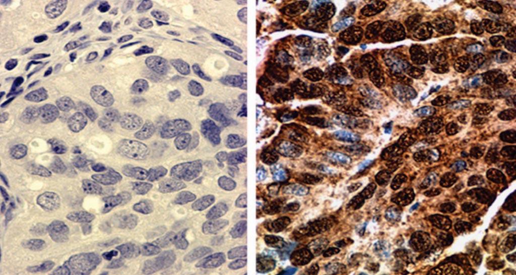 图片:子宫内膜样卵巢癌显示BRCA2的核染色(右半部);子宫内膜样卵巢癌BRCA2阴性染色(左半部)(图片蒙德克萨斯大学MD安德森癌症中心惠赐)。
