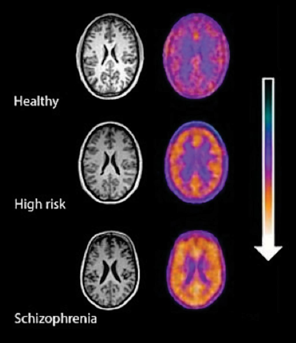 Image: Positron emission tomography (PET) imaging signal in healthy volunteers, high-risk subjects and patients with schizophrenia showing a stepwise elevation in microglial activity (orange) as severity of illness increases (Photo courtesy of MRC\'s Clinical Sciences Centre).