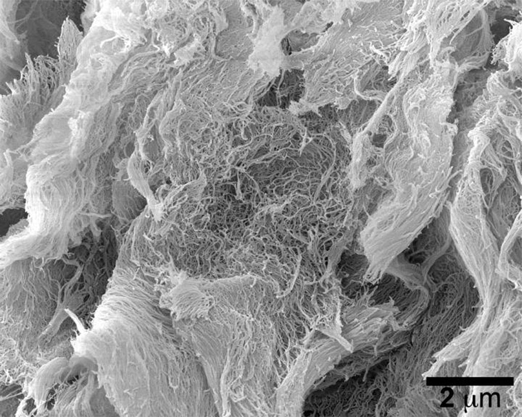 Image: A synthetic, injectable hydrogel developed at Rice University boosts the toxicity of a new class of cancer-fighting immunotherapy drugs. This scanning electron microscopy image shows the self-assembled nanofibers that make up the hydrogel (Photo courtesy of Hartgerink Research Group, Rice University).