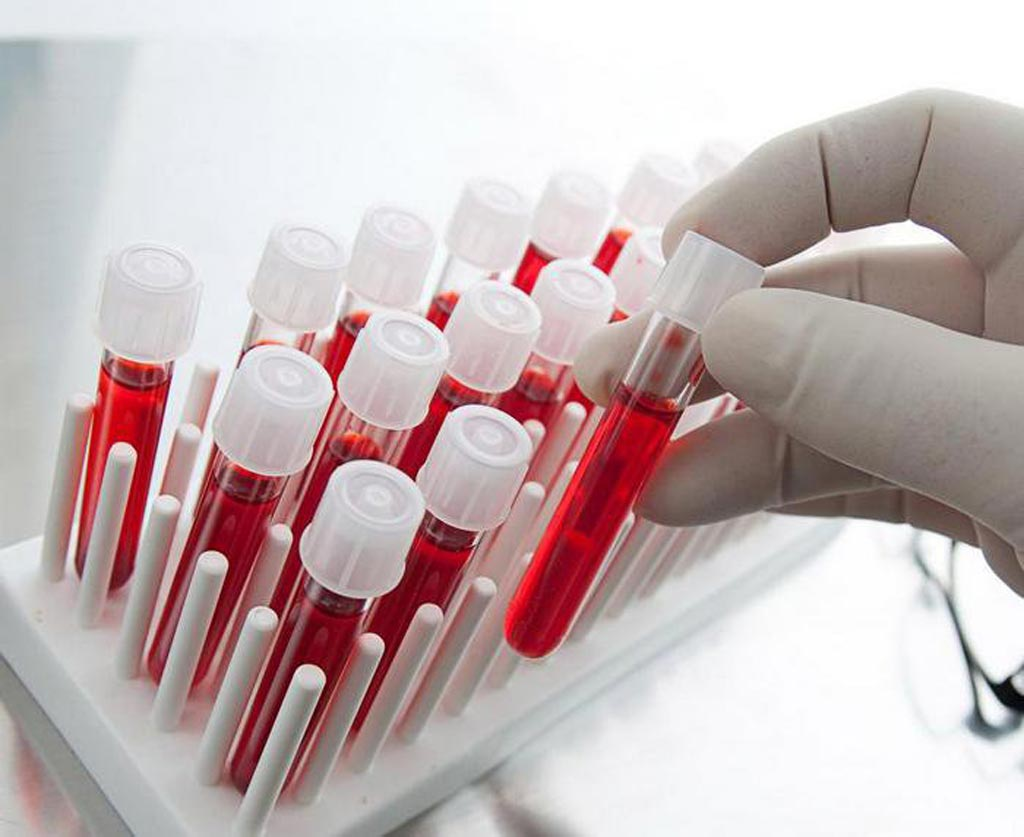 Image: The global blood screening market size is expected to reach USD 3.9 billion by 2024, driven by increasing screening of donors and continued technological advancements by the market players (Photo courtesy of Shutterstock).