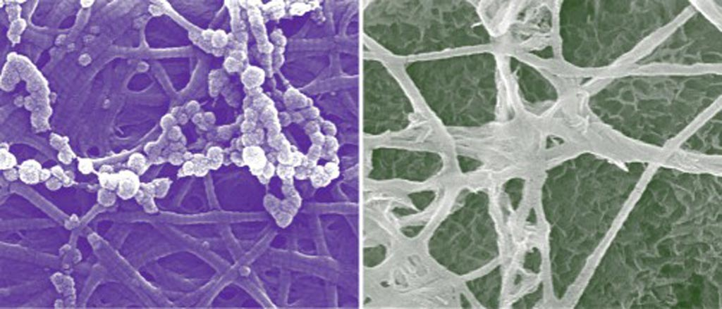Image: Calcium phosphate mineralization occurs in both extra- and intrafibrillar spaces of collagen (left and right images, respectively). The confined collagen structure contributes to reducing the thermodynamic energy barrier to intrafibrillar nucleation for bone mineralization (Photo courtesy of Washington University).