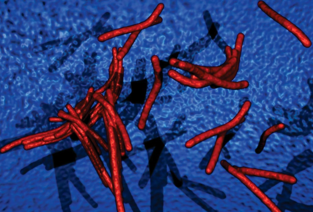 Image: Computer-generated illustration of Mycobacterium tuberculosis bacteria, Ziehl-Neelsen stain. Acid-fast bacilli stain red and the background is blue (Photo courtesy of Microbiology Pictures).