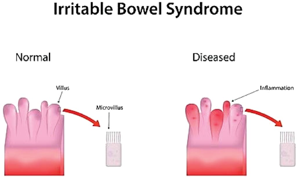 Image: A diagram comparing normal and diseased in irritable bowel syndrome (Photo courtesy of HealthNormal).