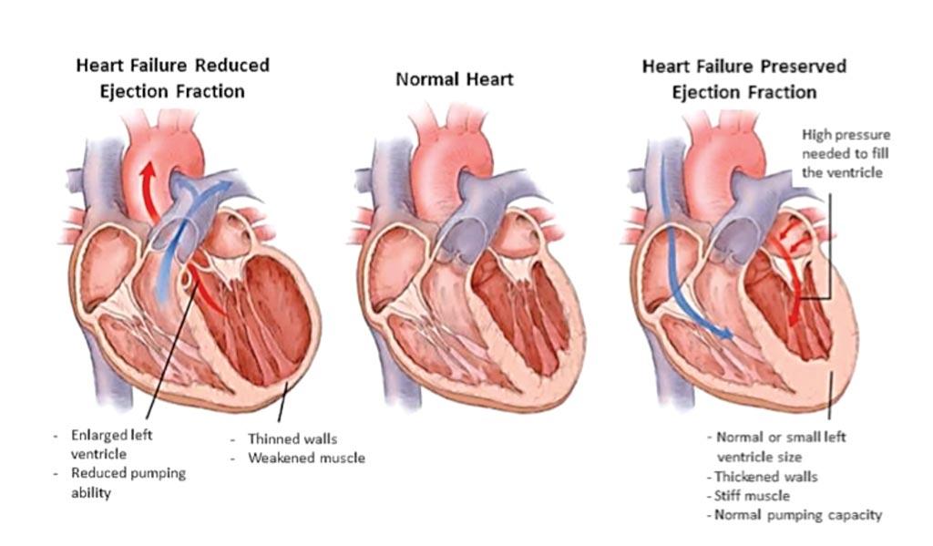 心力衰竭的两种形式与正常心脏的对比图(图片蒙南卡罗莱纳医科大学惠赐)。