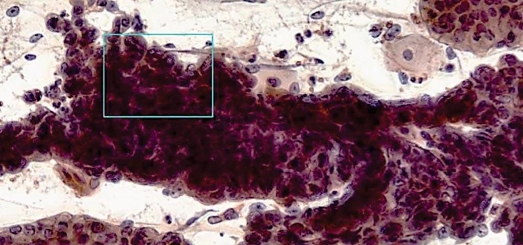 WATS3D活检是钳活检的辅助手段,它发现了一名食管异常的患者(图片蒙CDx Diagnostics公司惠赐)。