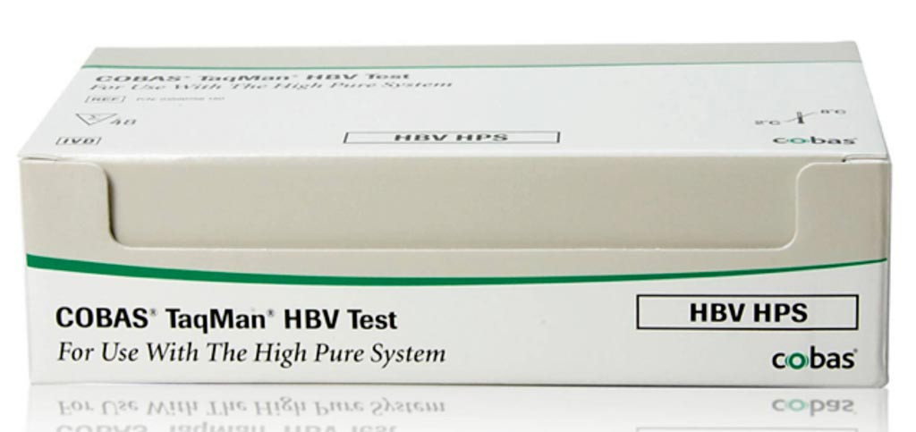 Image: The COBAS TaqMan HBV test (Photo courtesy of Roche Diagnostics).
