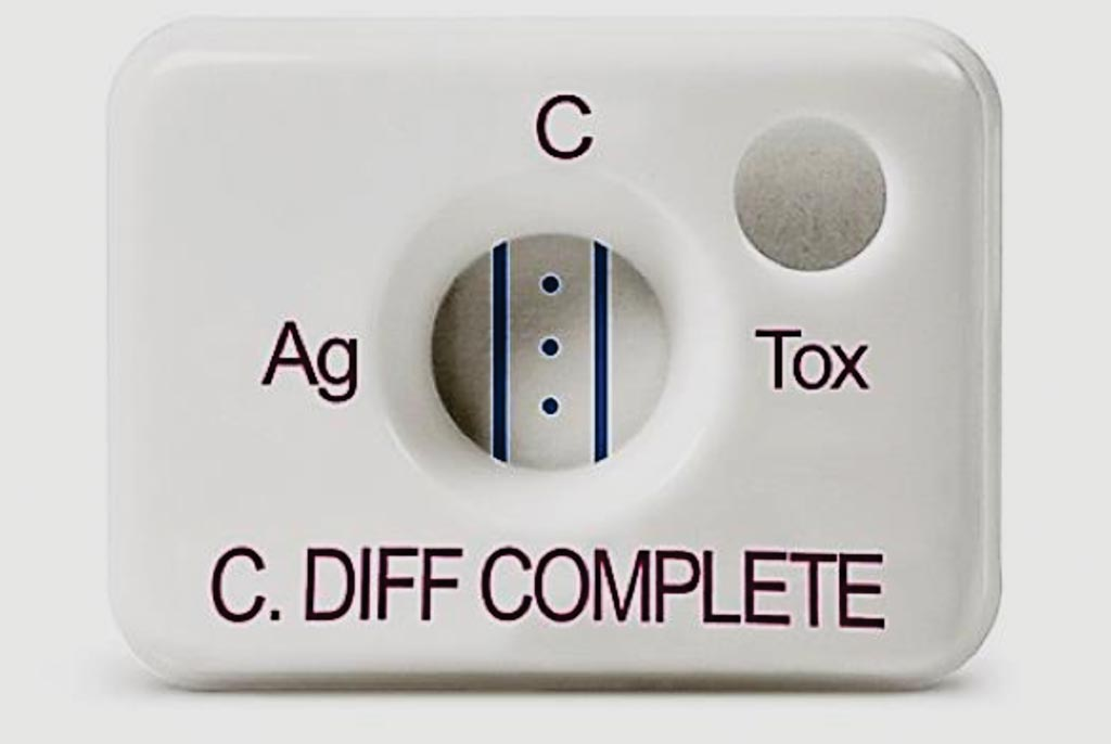 Image: A positive C. DIFF QUIK CHEK COMPLETE. The assay simultaneously tests for GDH and Toxins A & B providing actionable C. difficile results in less than 30 minutes (Photo courtesy of Alere).