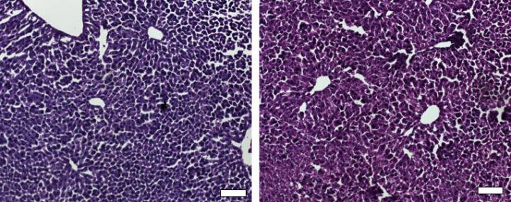 Image: Histological sections of liver from control mice treated with saline (left) and the CRISPR/Cas9 epigenetic repression system in which cholesterol levels were lowered (right) show generally normal and healthy tissue (Photo courtesy of Dr. Charles Gersbach, Duke University).