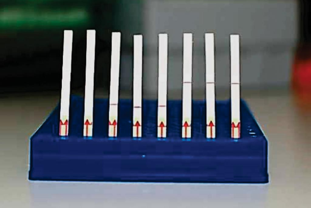 Image: A collection of SHERLOCK paper test strips: Unused paper strips (Left); Paper tests displaying a negative SHERLOCK readout (Middle); Paper tests displaying a positive SHERLOCK readout (Right) (Photo courtesy of Broad Institute of MIT and Harvard).