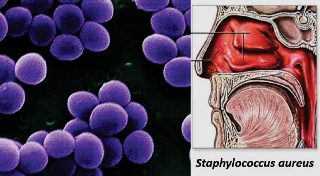 Image: The habitat and morphology of Staphylococcus aureus (Photo courtesy of Sagar Aryal).