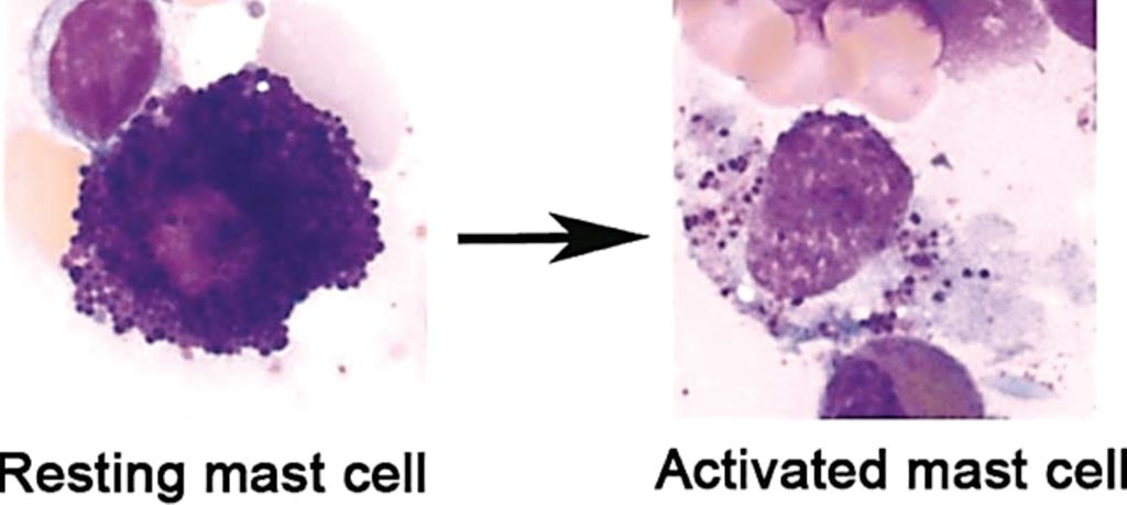 Image: Mast cells obtained from the human bone marrow; May-Grünwald/Giemsa stain of a resting human mast cell and a mast cell following activation-induced degranulation. Note the loss of granule staining (Photo courtesy of University Hospital of Bonn).