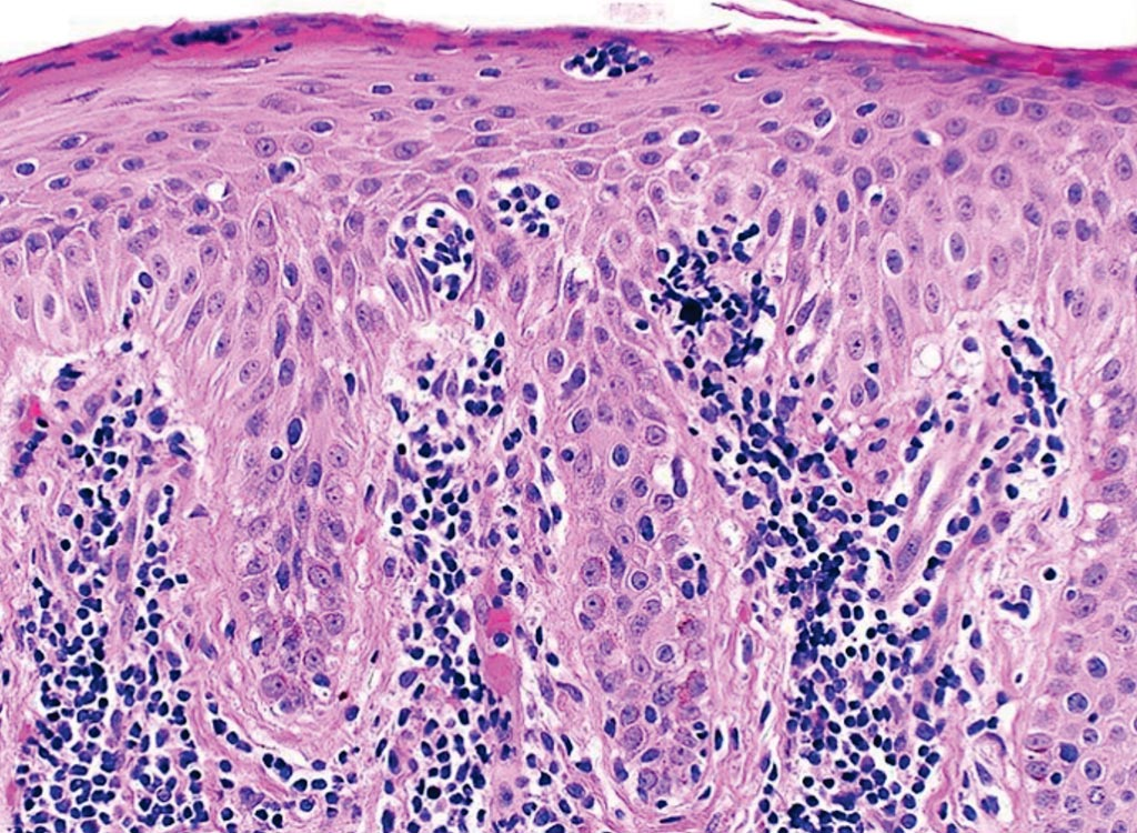 Image: A histopathology of classic Mycosis fungoides. This skin biopsy specimen demonstrates an atypical lymphocytic infiltrate going up into the epidermis (epidermotropism) in the absence of epidermal edema (spongiosis). The collection of atypical lymphocytes surrounding a Langerhans cell is a Pautrier microabcess, the hallmark of classic MF (Photo courtesy of the University of Pennsylvania).