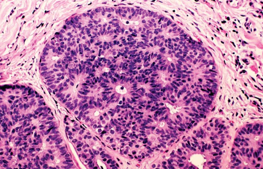 Image: A photomicrograph of breast cancer cells in purple surrounded by healthy tissue in pink (Photo courtesy of US National Institute of Health).