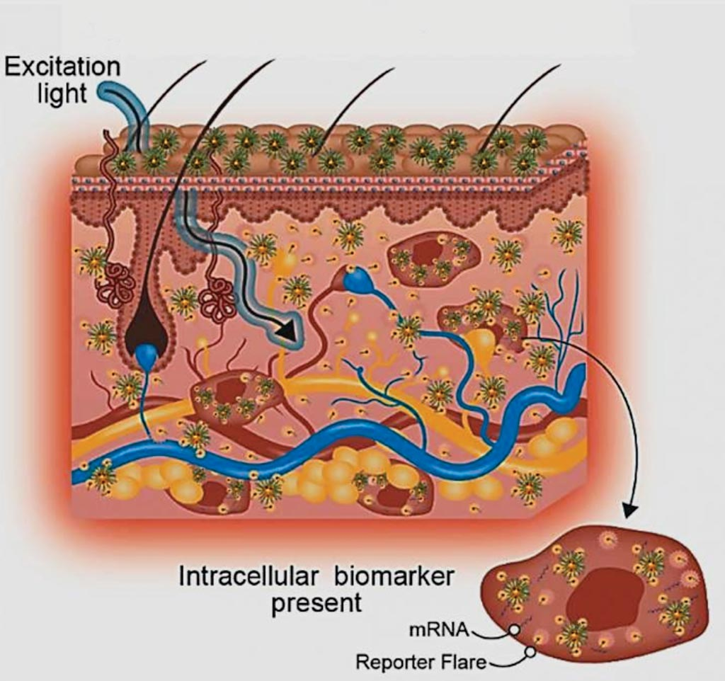 Image: A diagram of simplifying disease diagnosis using topically applied nanotechnology could change the way skin diseases such as abnormal scars are diagnosed and managed (Photo courtesy of Nanyang Technological University).