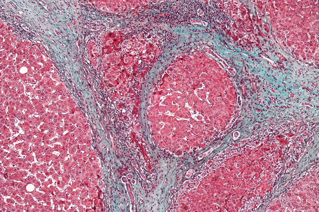 Image: A micrograph showing cirrhosis of the liver. The tissue in this example is stained with a trichrome stain, in which fibrosis is colored blue. The red areas are the nodular liver tissue (Photo courtesy of Wikimedia Commons).
