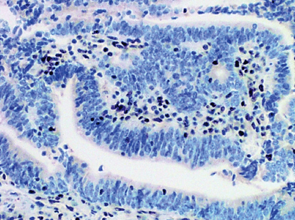 Image: An endometrial carcinoma showing loss of nuclear expression of MSH2. The lymphocytes and stromal cells should stain positive and represent an internal positive control (Photo courtesy of Memorial Sloan Kettering Cancer Center).