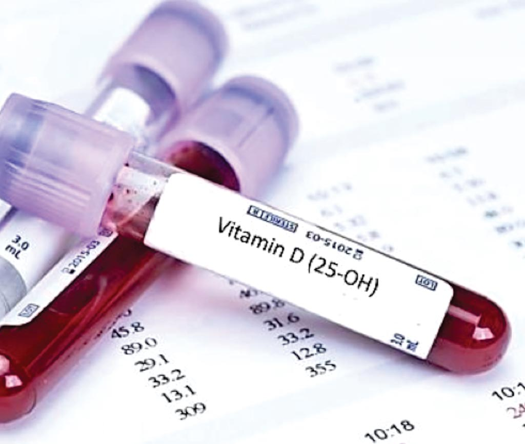 Image: A blood test for Vitamin D, where deficiency may indicate higher plasma lipid levels (Photo courtesy of bluehorizon).