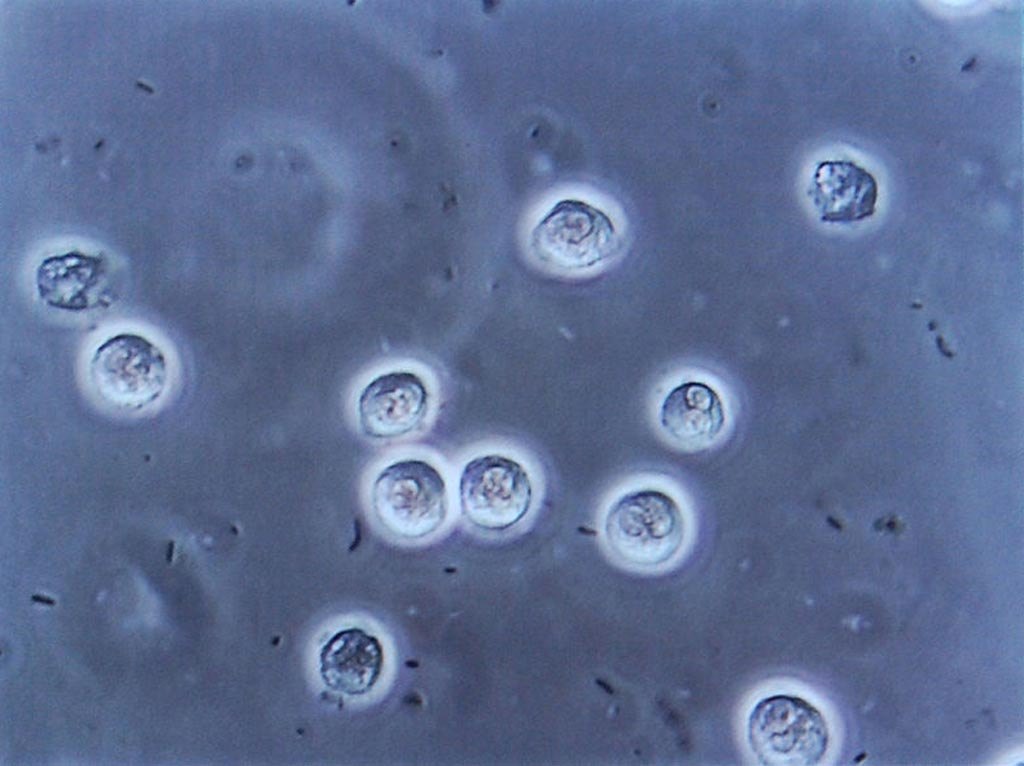 Image: Multiple bacilli (rod-shaped bacteria, here shown as black and bean-shaped) shown between white blood cells in urinary microscopy. These changes are indicative of a urinary tract infection (Photo courtesy of Wikimedia Commons).