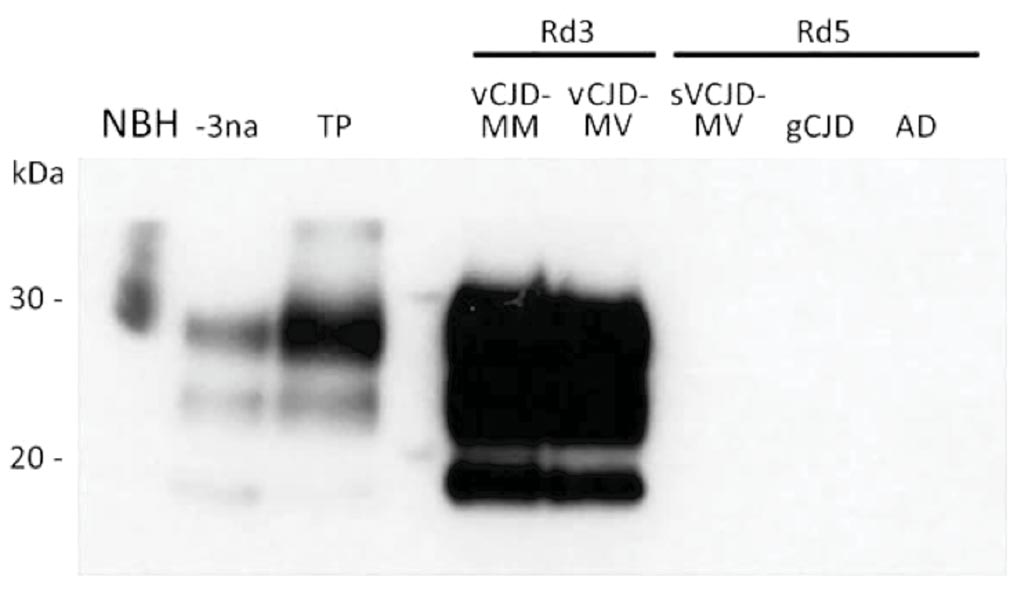 Image: A Western blot analysis of vCJD prions obtained after amplification by protein misfolding cyclic amplification (PMCA) of cerebrospinal fluid (CSF) from two patients with vCJD (MM and MV) and three control patients and a crude reference brain homogenate from a vCJD patient (Photo courtesy of Etablissement Français du Sang).