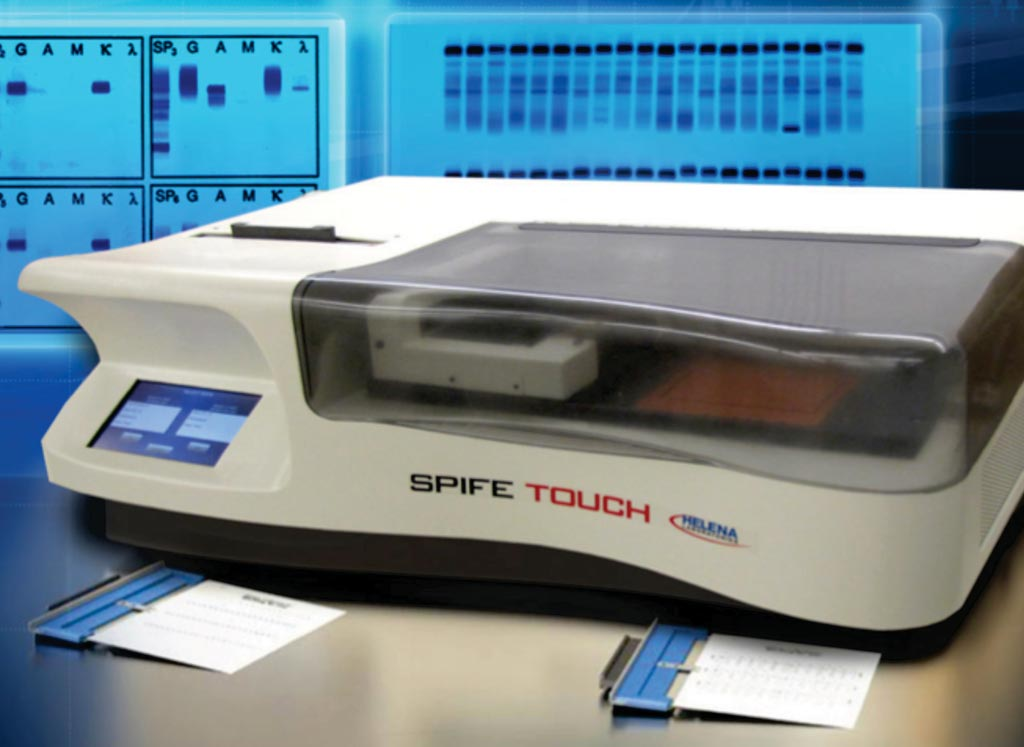 Image: The SPIFE Touch electrophoresis analyzer (Photo courtesy of Helena).