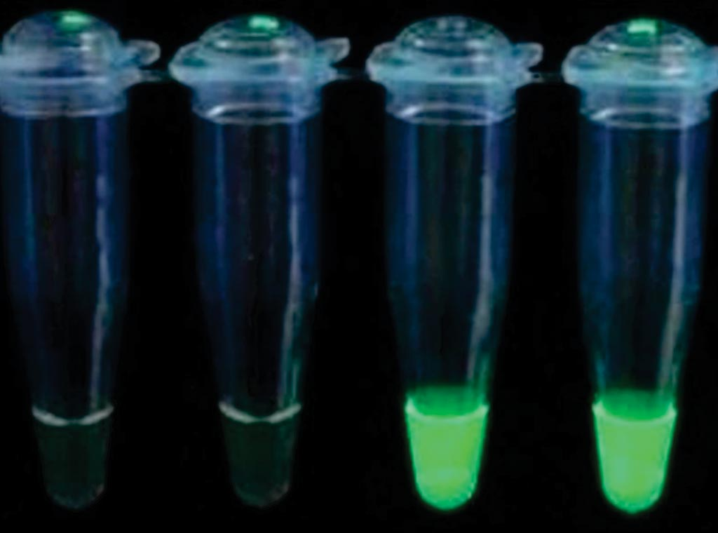 Image: The Loop Mediated Isothermal Amplification (LAMP) test for the detection of malaria under ultra-violet light, positives two right tubes (Photo courtesy of HUMAN Diagnostics).