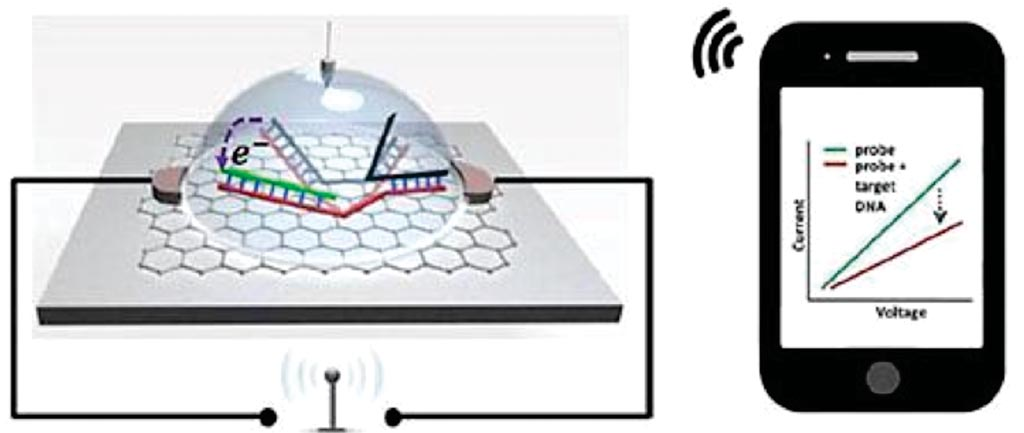 Image: An illustration of graphene-based single nucleotide polymorphism (SNP) detection chip wirelessly transmitting signal to a smartphone (Photo courtesy of Professor Ratnesh Lal, PhD).