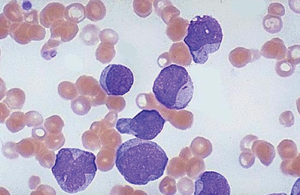 "Image: A blood smear from a patient with acute myeloid leukemia showing very large, immature myeloblasts with many nucleoli. A distinctive feature of these blasts is a linear red ""Auer rod\"" composed of crystallized granules (Photo courtesy of University of Utah Medical School)."