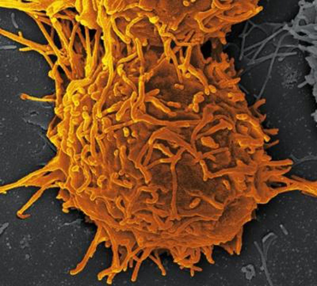Image: A thyroid cancer cell (Photo courtesy in ShutterStock).