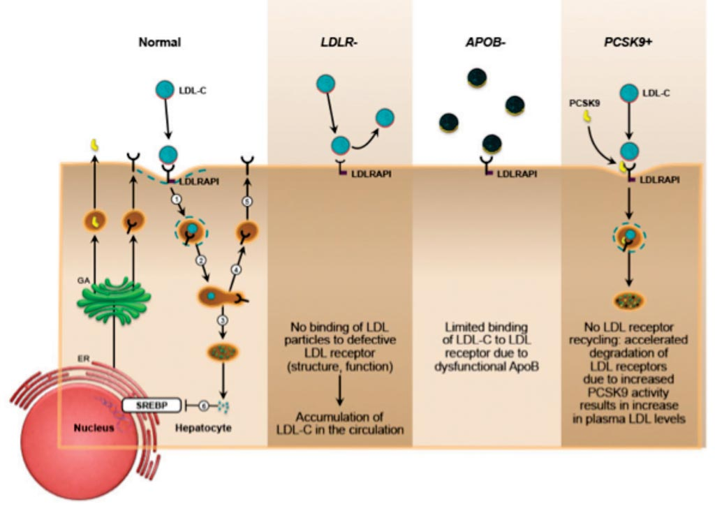 Image: Molecular basis of familial hypercholesterolemia with a dominant pattern of inheritance: impaired low-density lipoprotein cholesterol clearance due to variations in LDLR, APOB, PCSK9 (Photo courtesy of Mayo Clinic).