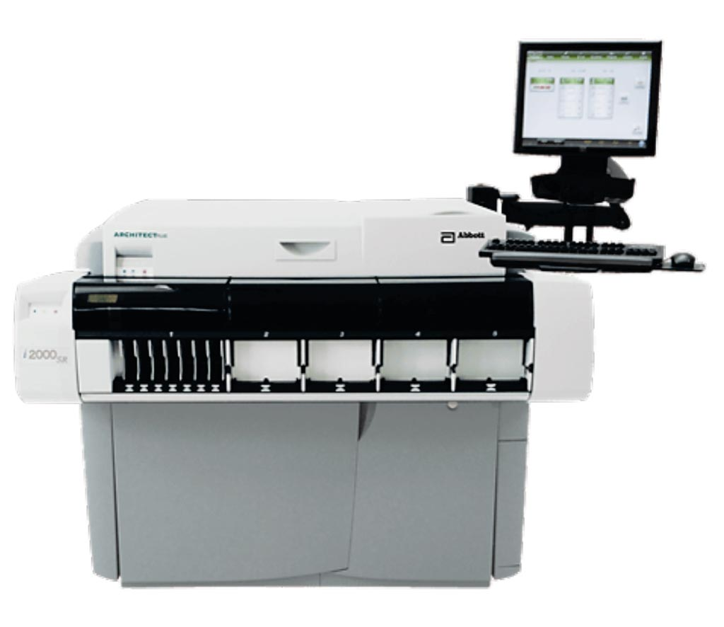 Image: The ARCHITECT i2000SR immunoassay analyzer (Photo courtesy Abbott Diagnostics).